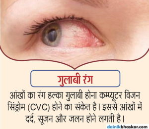 health_problem_by_eye_col, Do not ignore these signs eyes, can be serious illness,ayurveda tips