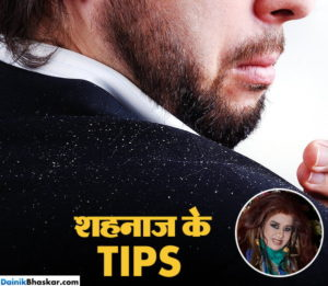 shehnaaz-dandruff-tips-co