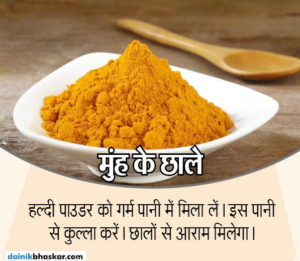 turmeric_health_benefits7